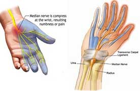 joint pain due to carpal tunnel pain