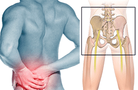 joint pain due to sacroiliac joint pain