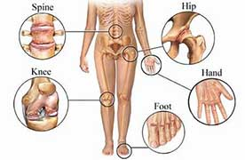 joint pain due to arthritis pain
