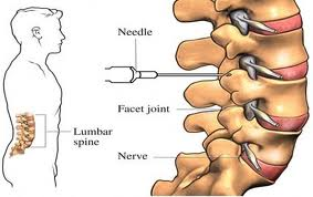 Facet Disease / Facet Syndrome | Neck Pain or Back Pain