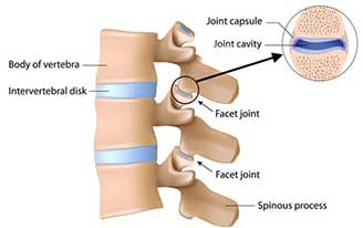 Facet Joint Pain After Car Accident