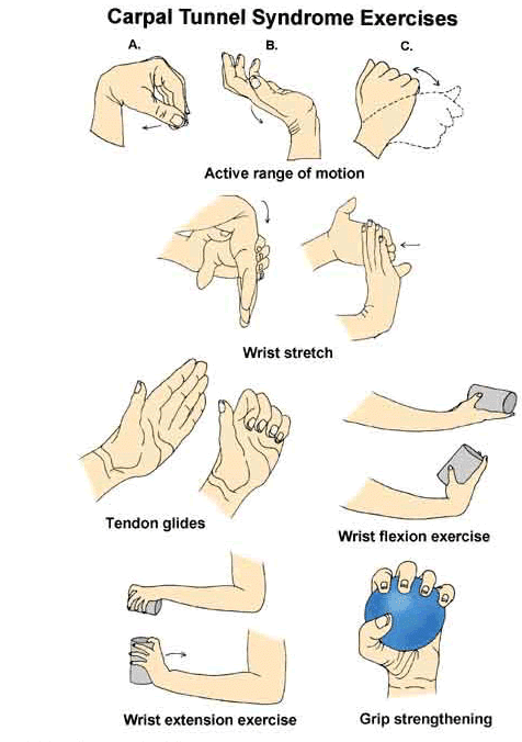 Carpal tunnel physical therapy exercises