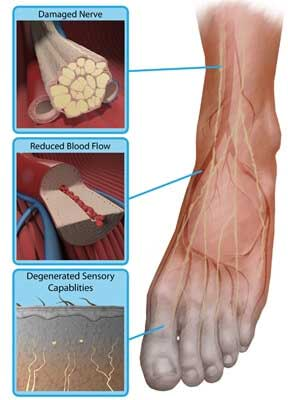 severe neuropathy in feet