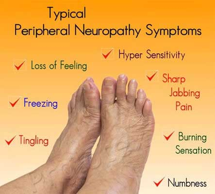 peripheral neuropathy incl alcoholic, diabetic neuropathy treatments, Skeleton